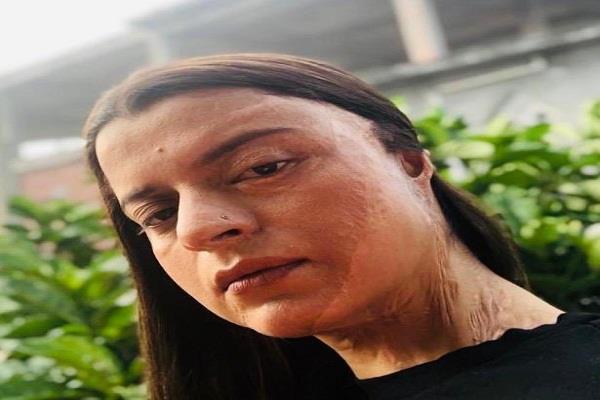 kangana ranaut sister rangoli chandel shares her acid attack story