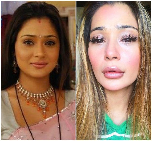 sara khan trolling from lip surgery