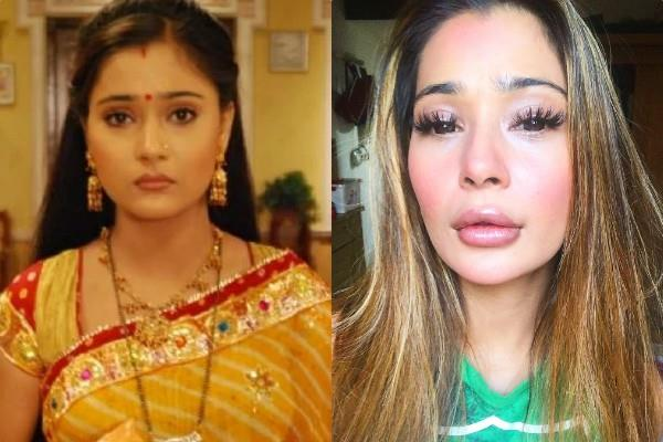 sara khan lip surgery