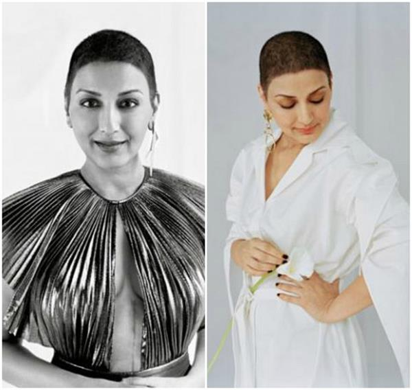 sonali bendre flaunts 20 inch scar from cancer surgery