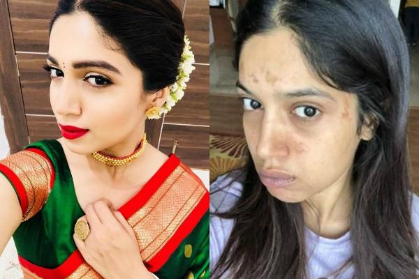 bhumi pednekar gets blisters on her face