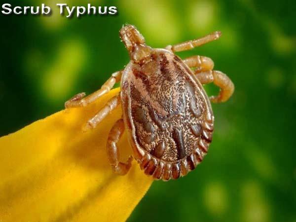 baby girl death of scrub typhus