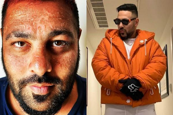 rapper badshah suffers sunburn while holidays  users mocked