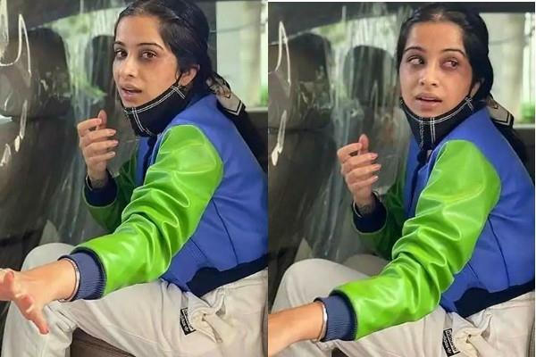 bigg boss 14 nikki tamboli injured sara gurpal s eyes photos viral