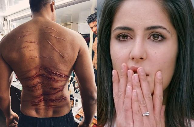 vicky kaushal showed dangerous back marks users said katrina will be sad