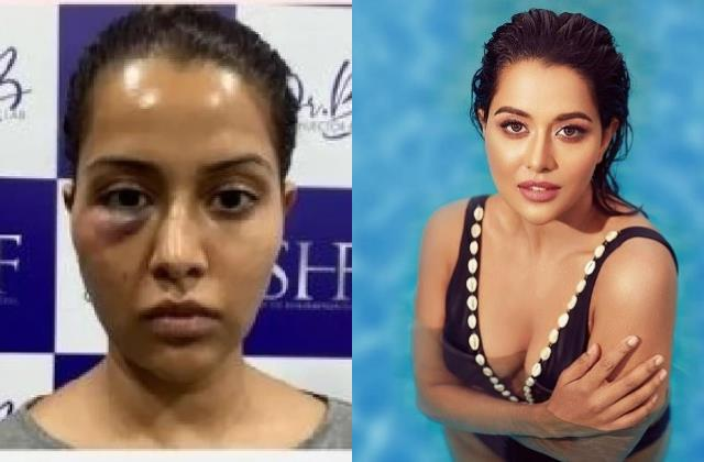 actress raiza wilson facial treatment goes wrong