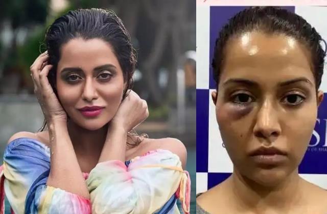 raiza wilson seeks 1 crore damages from doctor after dermatological procedure