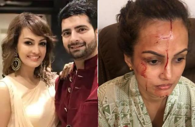 karan mehra wife nisha rawal injured picture viral