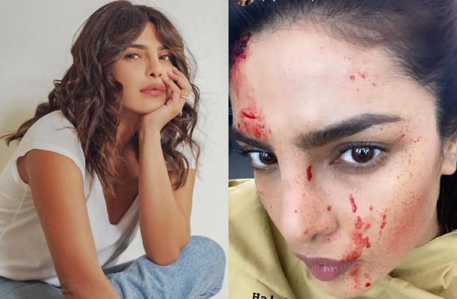 priyanka chopra shares her bloody face photo from the shooting set