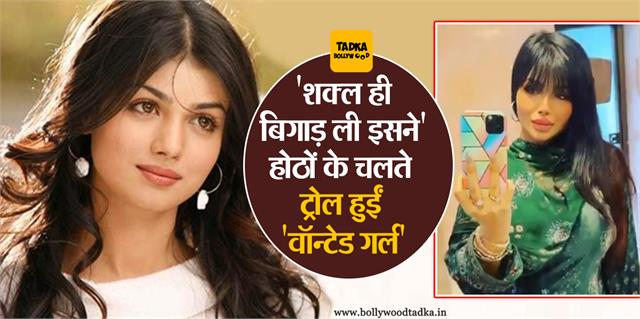 wanted girl ayesha takia trolled for lip surgery video viral